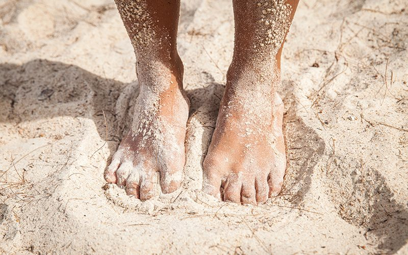 six ways to prevent sand fleas at the beach